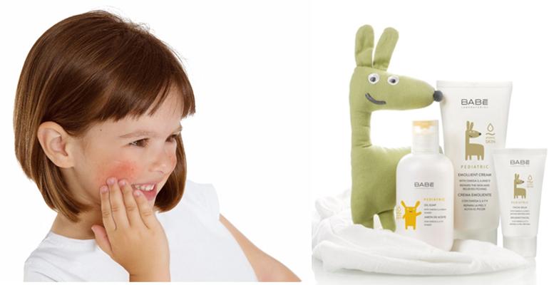 Atopic Prone Skin, gama de productos dermocosméticos para el cuidado infantil de la piel