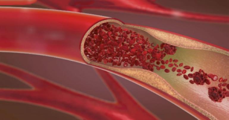 Solución natural para un flujo sanguíneo saludable a partir del extracto de tomate